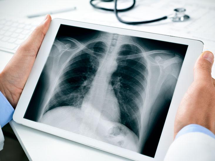 Rīcības rekomendācijas un COVID19 radioloģiskās pazīmes